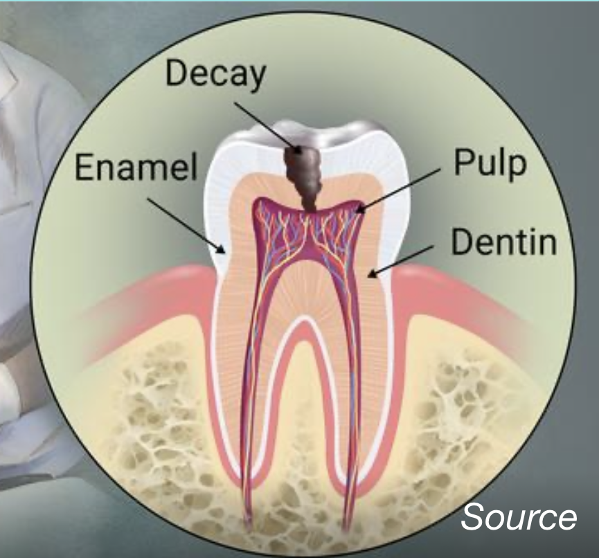 Dental Decay in Reston, VA