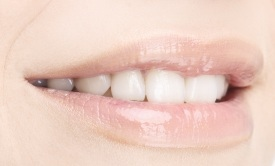 Cosmetic Dentist in Reston, VA