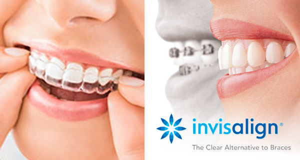 Invisalign in Reston, VA