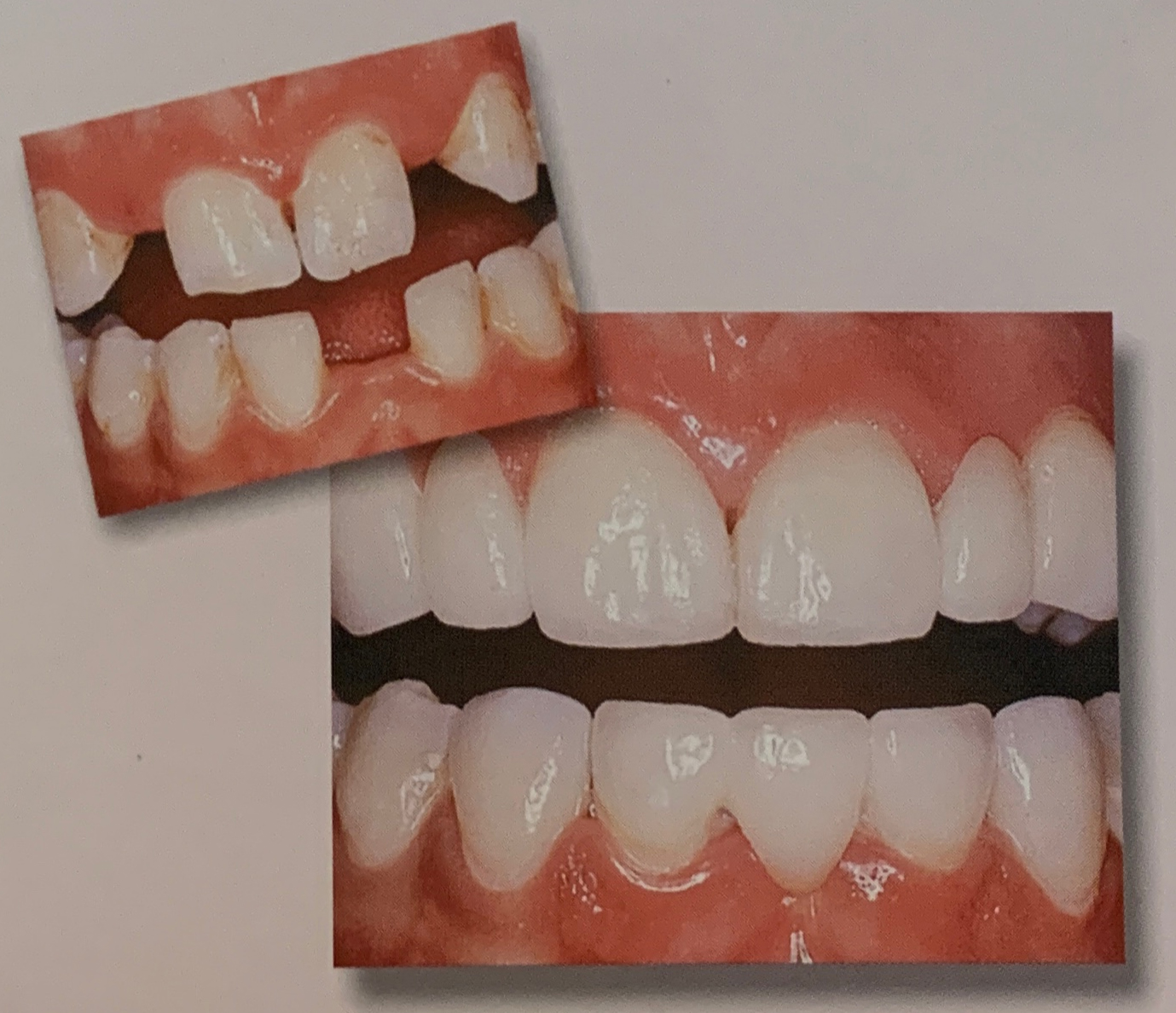 Crowns and Bridges | Cosmetic Dentistry in Reston, VA