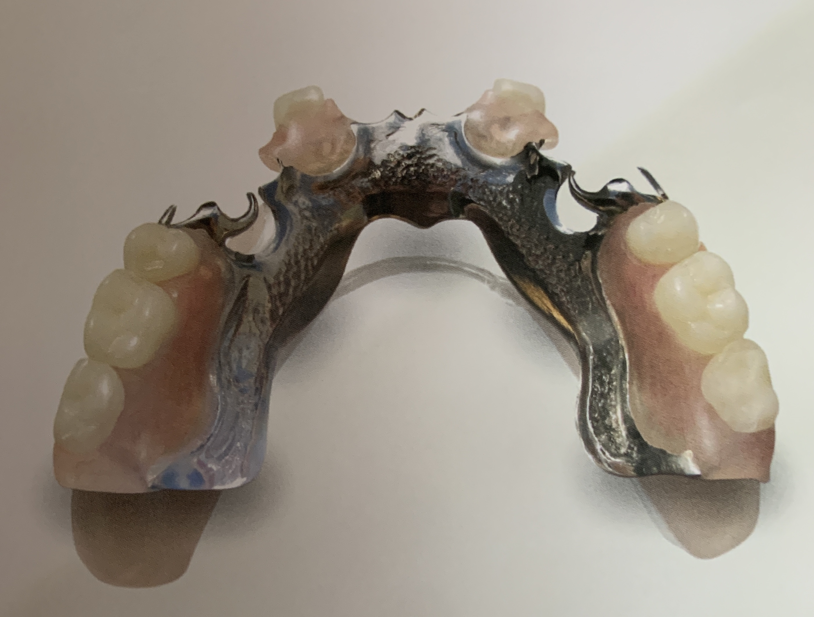 Dentures in Reston, VA