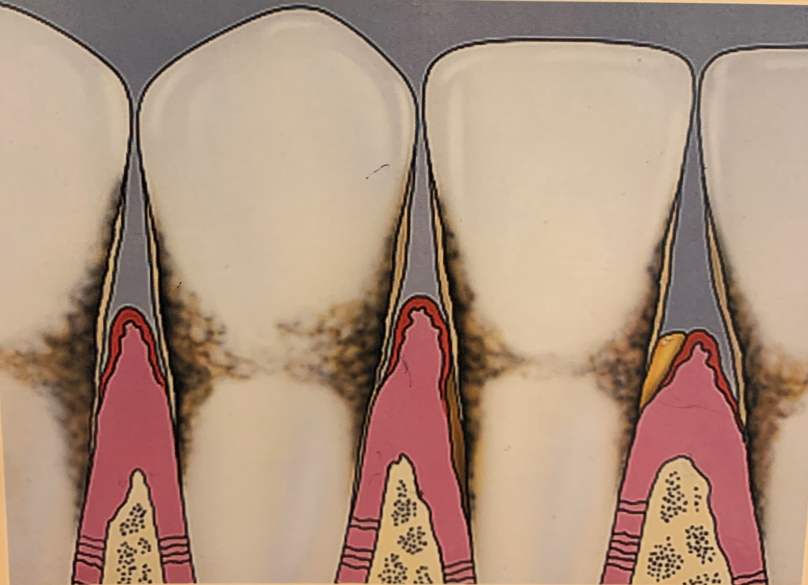 Gum Disease in Reston, VA