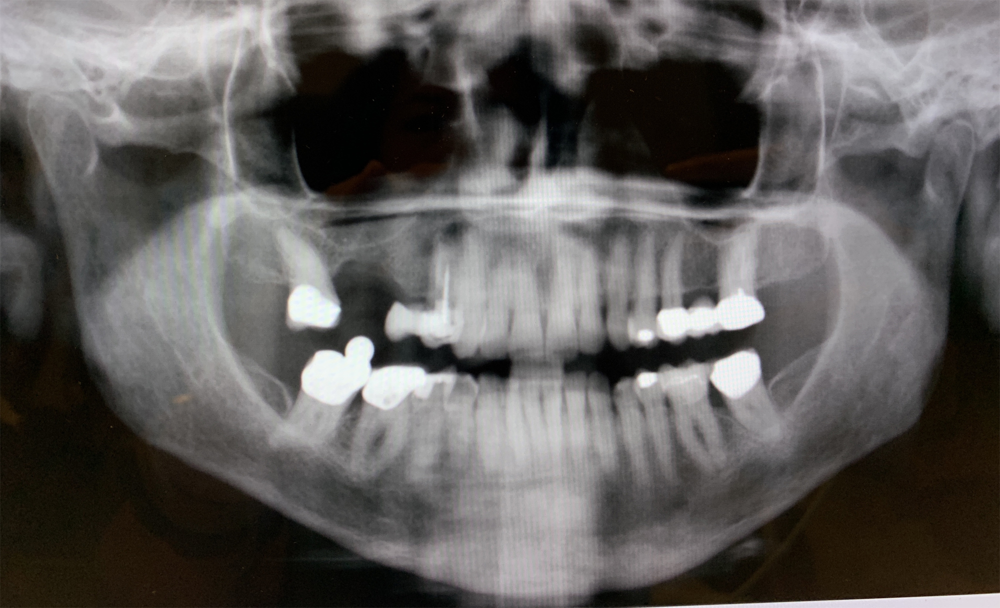 Panoramic X-Ray