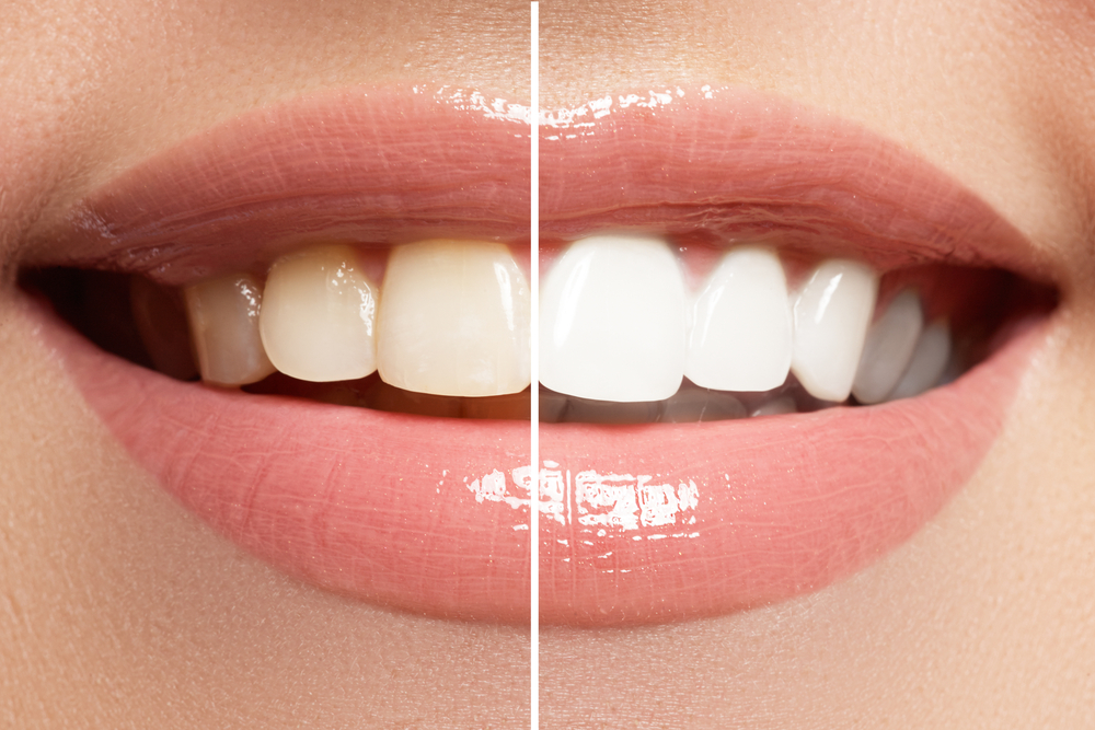 Tooth Whitening | Cosmetic Dentistry in Reston, VA